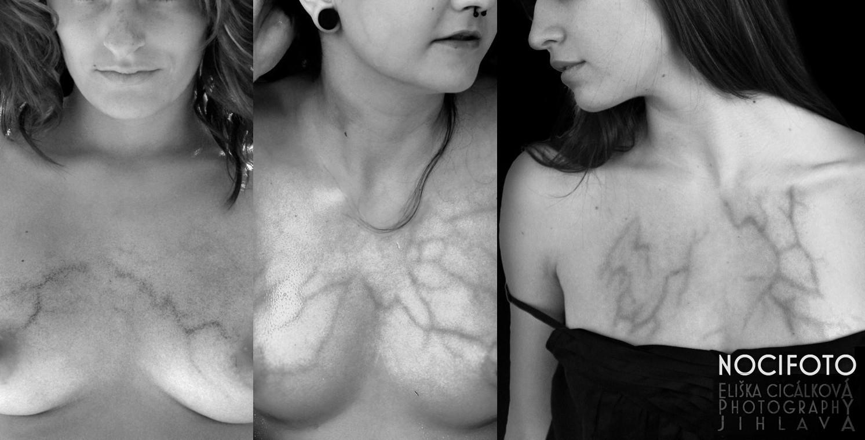 Žilky na prsou